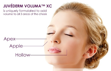 About JUVÉDERM VOLUMA XC
