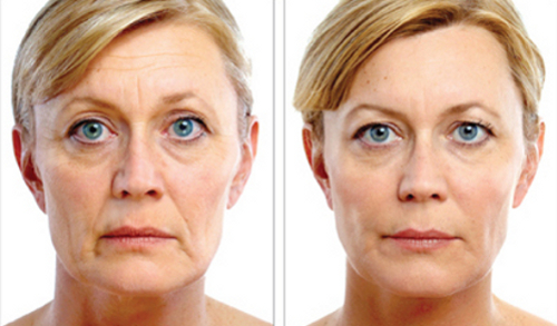 JUVÉDERM VOLUMA XC Before & After