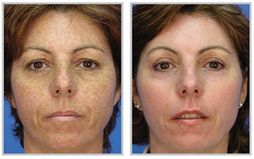 NanoLaserPeel Before & After